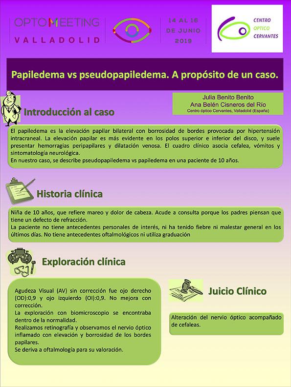 Papiledema vs pseudopapiledema. A propósito de un caso.